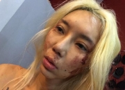DJ Leng Yein alleges abuse, posts bloody photos on Facebook