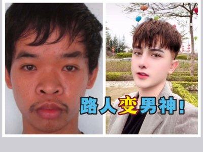 不甘面试时被嫌样丑!男子不顾父母反对砸RM7万整形