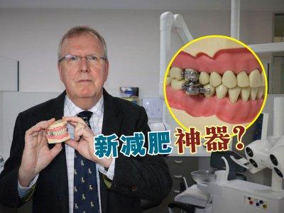 """嘴巴只能张开2mm!科学家研发""""锁牙神器""""控制食量"""