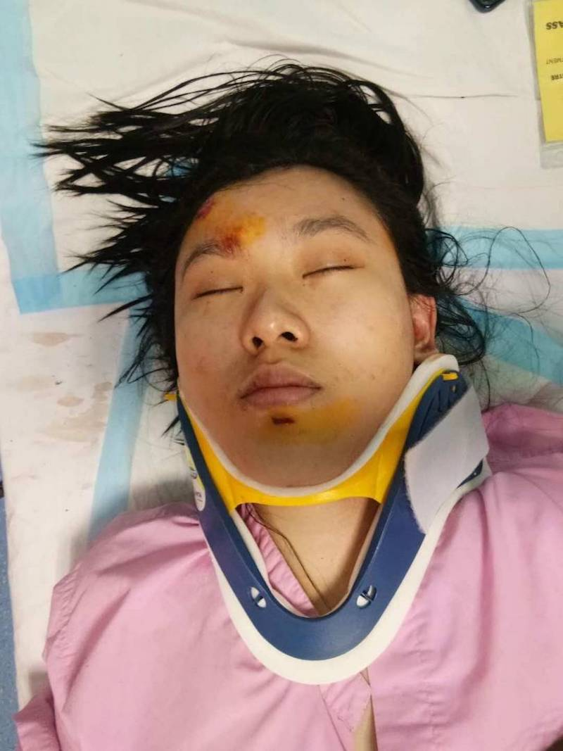 A victim said to be Chua Yennie lies in a hospital bed with a neck brace following the accident. — Picture courtesy of PDRM