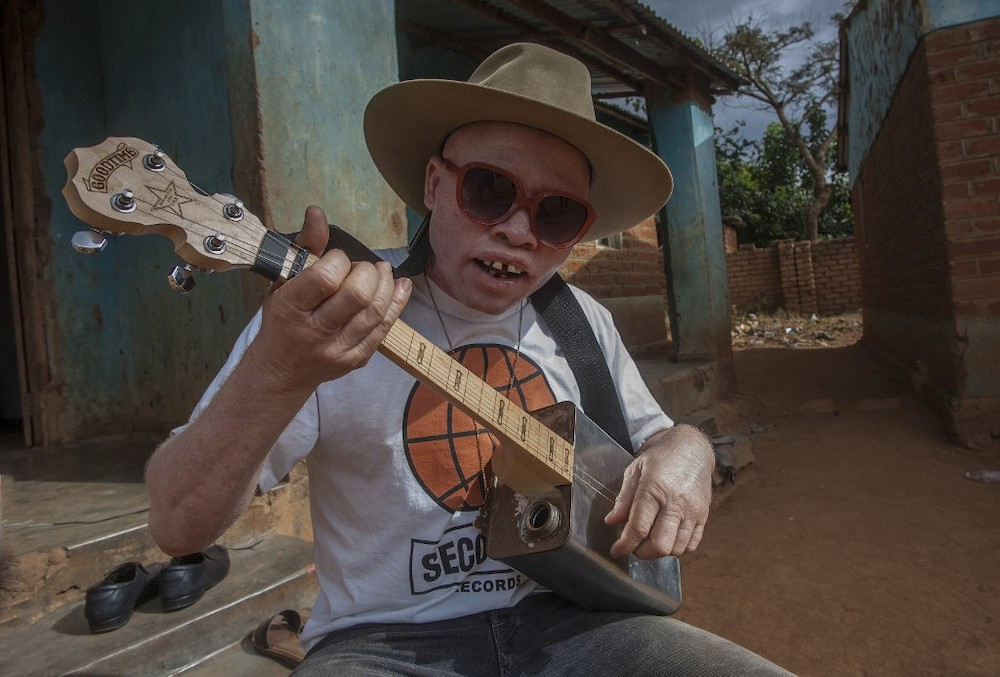 Malawi's albinos live in fear of being murdered for witchcraft. — AFP pic