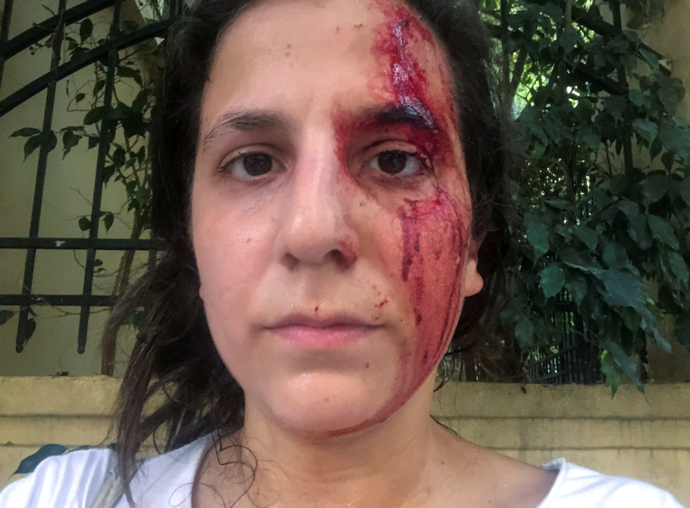 TV producer Yara Abi Nader is pictured with her face covered in blood, in a selfie following a blast in Beirut's port area, Lebanon August 4, 2020. — Reuters pic
