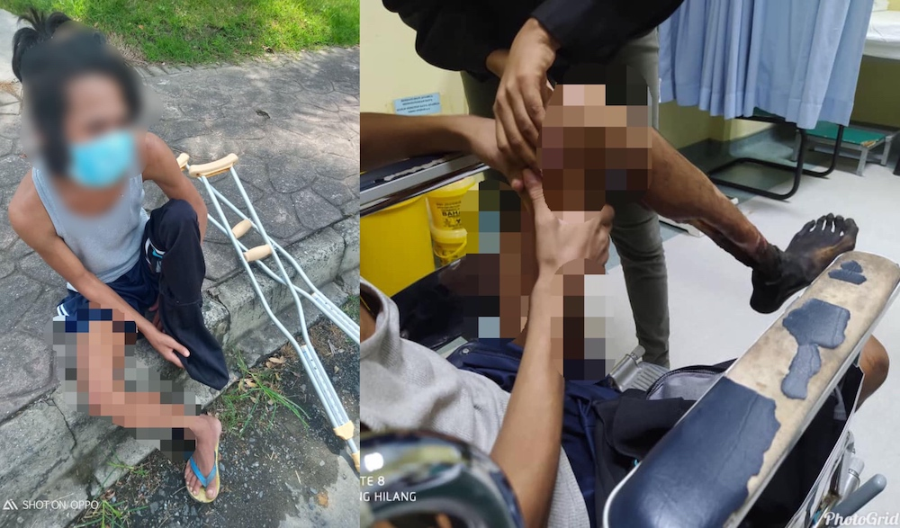 The man known as Jaya was driven by desperation to walk to Lahad Datu Airport for help after he developed gangrene. — Pictures from Facebook/bhenharjulabdulrazak