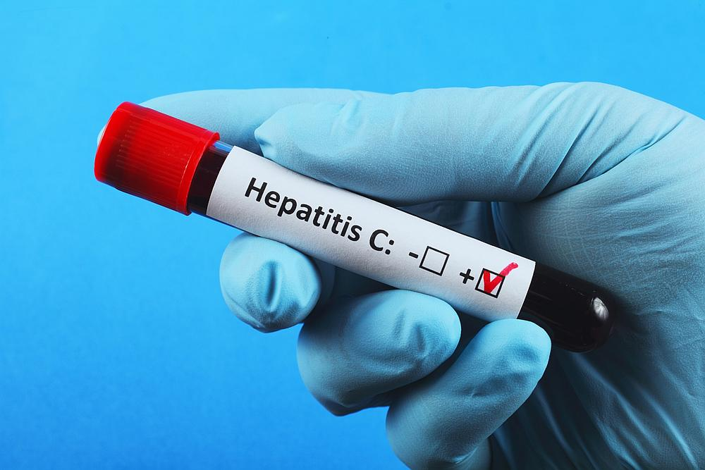 Hepatitis C is a blood-borne pathogen that causes liver diseases such as cancer and cirrhosis. —  Bogdan Steblyanko / IStock.com pic via AFP