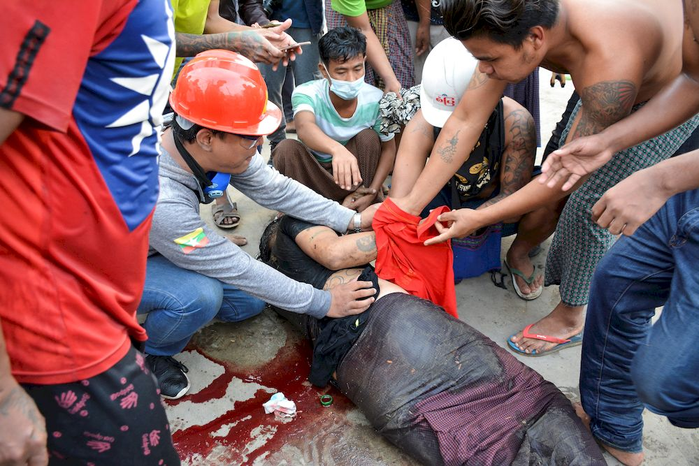 An injured man is seen after protests against the military coup, in Mandalay, Myanmar, February 20, 2021. — Reuters pic