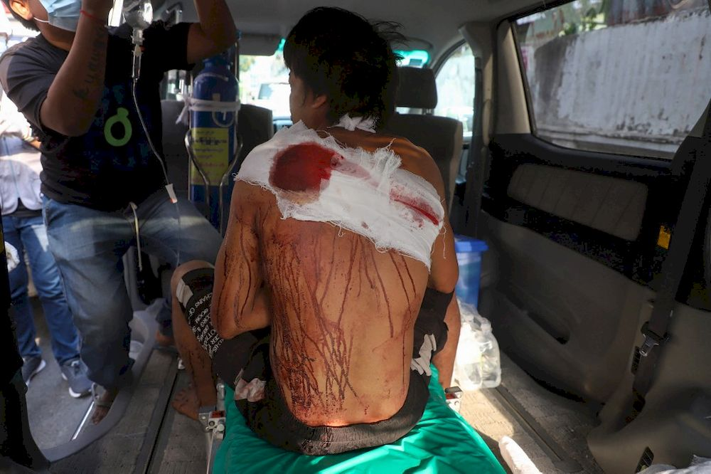 A protester who was injured during a demonstration against the military coup receives medical attention in a vehicle in Mandalay