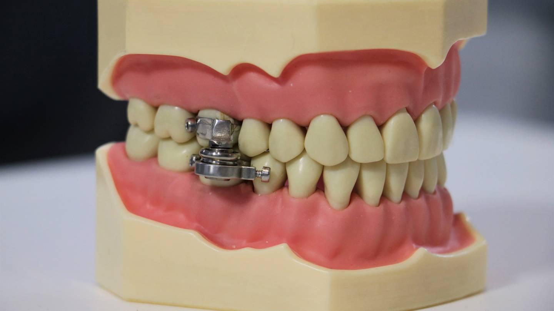 DentalSlim Diet Control 装置具有侵入性较小、危险性较低、且相对人性化。